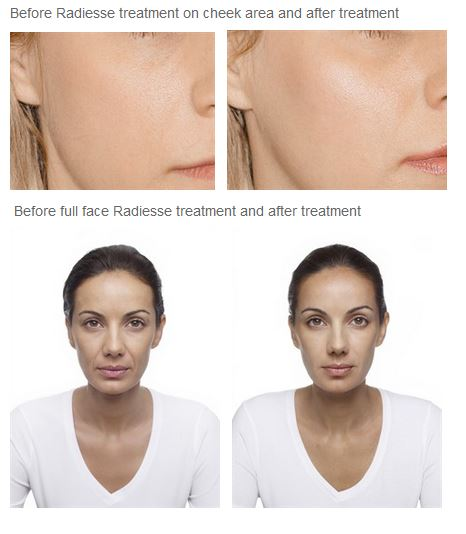 Radiesse Glasgow | Fillers Glasgow | Non Surgical Face lift